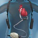 Coeur-Artificiel