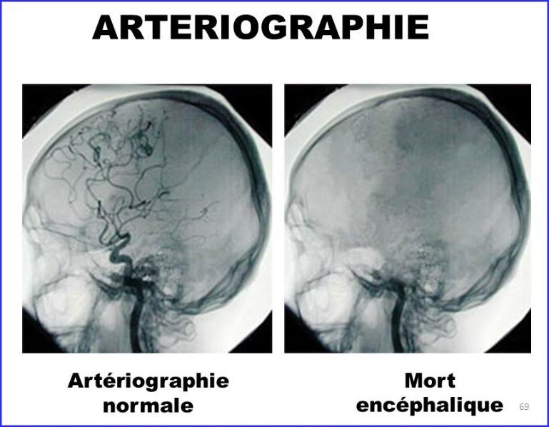 Qu'est–ce que la Mort Encéphalique ou Cérébrale
